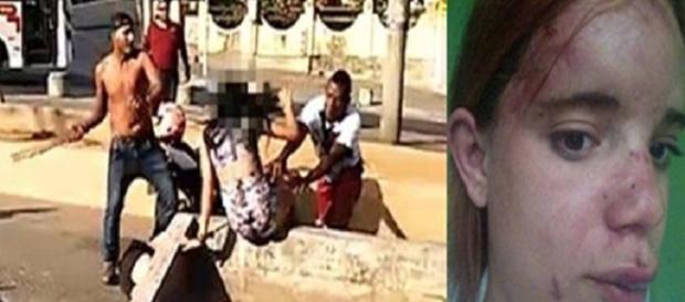Irmãs foram atacadas no Rio de Janeiro