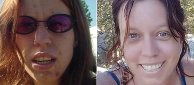 Fotos da americana de antes e depois da recuperação