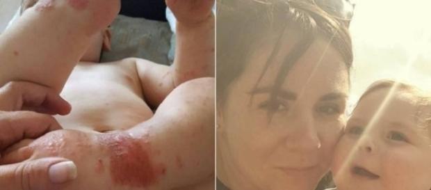 Bebê de 1 ano contrai herpes e mãe deixa alerta