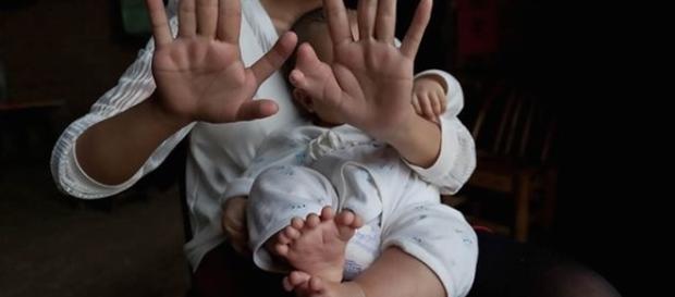Mãe e filho tem dedos a mais nos pés e nas mãos.