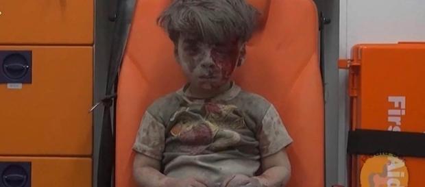 Foto de Omran Daqneesh chocou o mundo - Foto: Reprodução Nbcnews