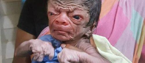 Menino de Bangladesh que nasceu com progeria.