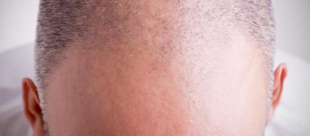 Calvizie: scoperti principi attivi che fanno ricrescere i capelli ... - panorama.it