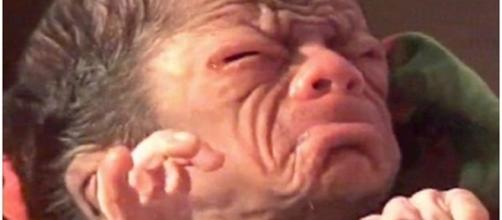 Bebê nasce com doença rara que causa envelhecimento precoce