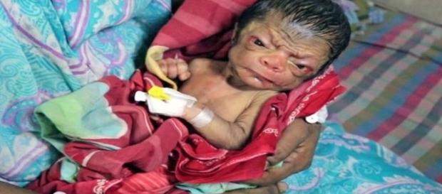 Bebê é portador de uma rara condição chamada progeria (Metro)