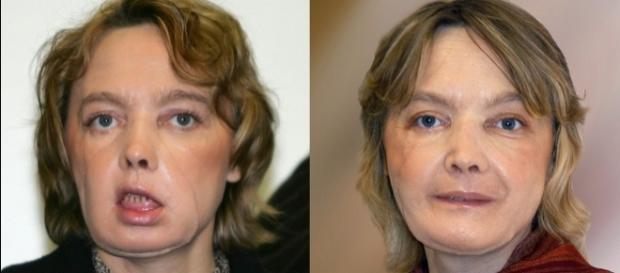 Fotos de Isabelle em dois momentos depois do transplante