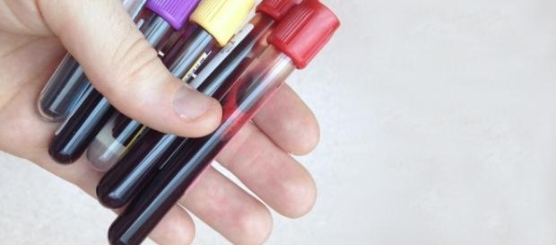 El análisis funcionaría como un detector de humo al encontrar el rastro dejado por el tumor en la sangre