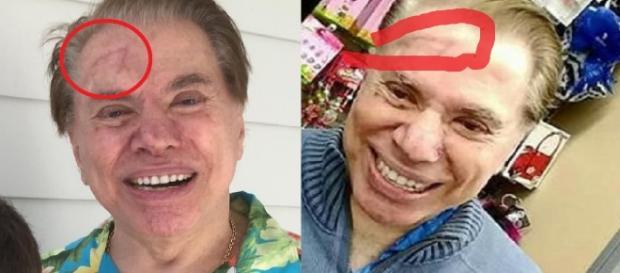 Silvio Santos e a famosa cicatriz