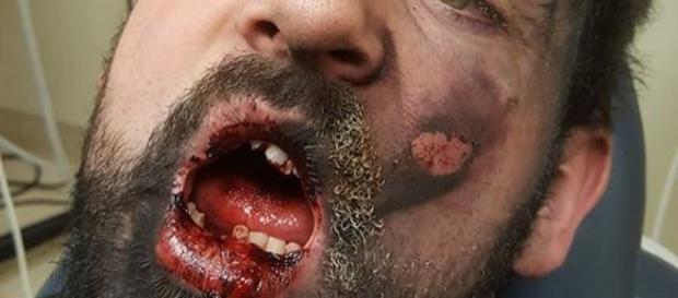 Homem fica seriamente ferido com explosão de cigarro.