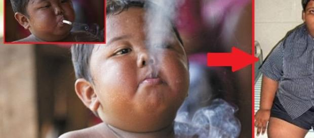 Menino que fumava 40 cigarros por dia