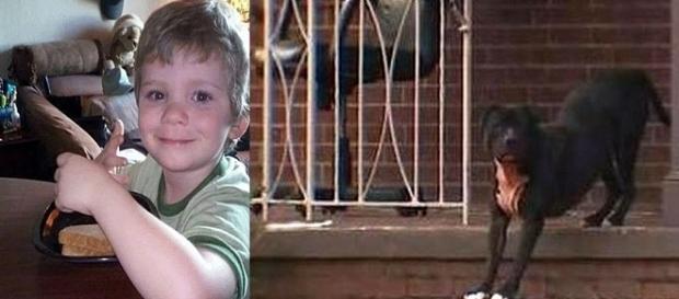 Menino de anos morre e menina de 5 anos fica gravemente ferida, após ataque de Pitibulls.