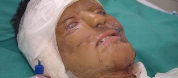 Mulher foi atingida por ácido e sua história comove - Google