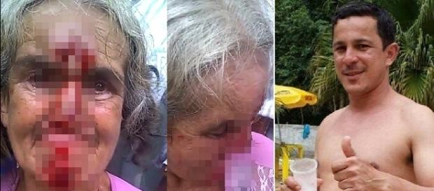 Na imagem a idosa que estava bastante assustada e chorosa no local do crime.