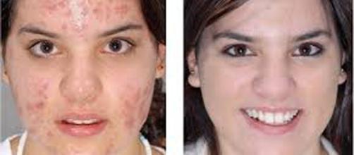 Impressionante: a verdade sobre o que o sabonete faz com a sua pele