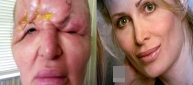 Botox deixou o rosto da mulher completamente deformado.