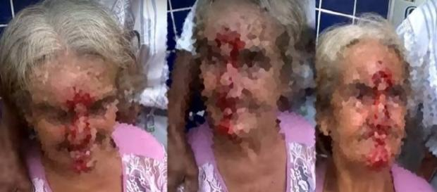 Senhora ficou com rosto sangrando após agressão