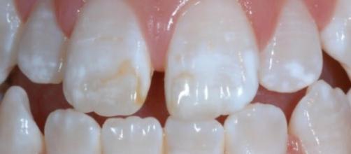 Manchas de fluorose em dentição permanente de criança. (https://goo.gl/images/CyJkwL)