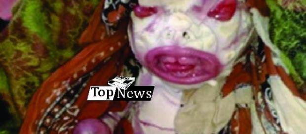 """Uma mãe evitou sua filha como uma """"maldição"""" sobre um defeito de nascença"""
