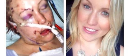 Melissa Dohme após o ataque sofrido pelo seu ex.
