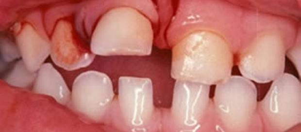Traumatismo dental na dentição decídua - luxação intrusiva. (https://goo.gl/images/0Za4Ft)