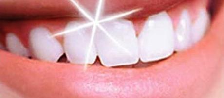 Sorriso do paciente após clareamento dental caseiro. (https://goo.gl/images/9a3FnW)