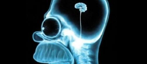 Falta de exercícios pode diminuir o cérebro