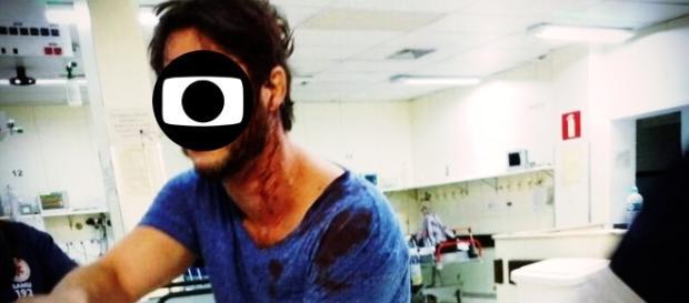 Ex-ator da TV Globo sofre ferimentos