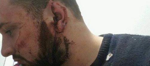 Irlanda, 23enne aggredito e preso a morsi: ha perso una parte di orecchio