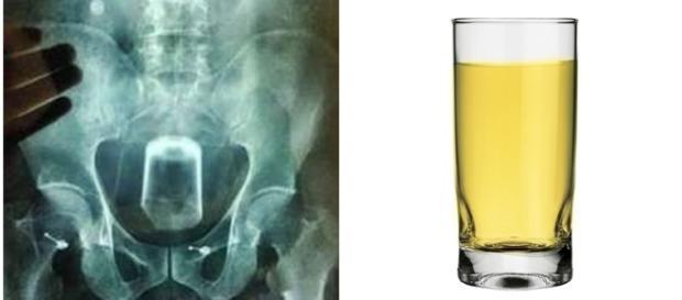 Homem introduz copo de vidro em seu ânus