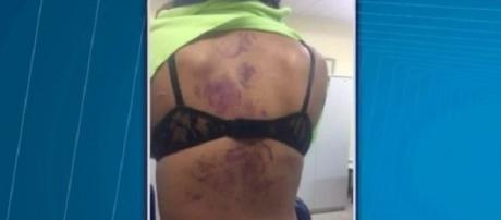 Mulher espancada, torturada e estuprada por companheiro em Salvador.