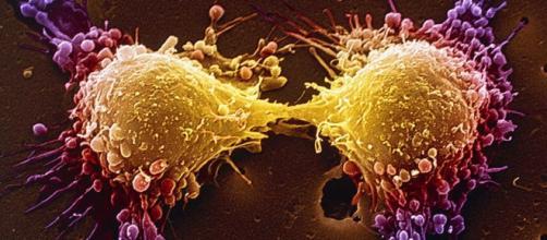 Nova terapia tem o mesmo funcionamento da fosfoetanolamina sintética