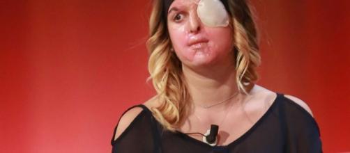Gessica Notaro si è mostrata in questi lunghi mesi con il viso deturpato e la benda su un occhio