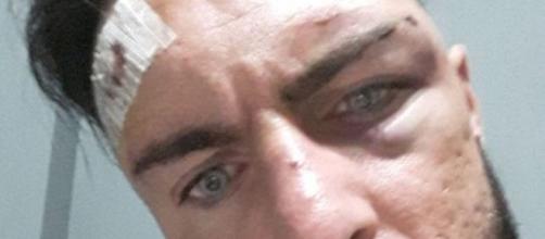 Giuliano Fildigrano mostra i segni dell'aggressione subita a Novara