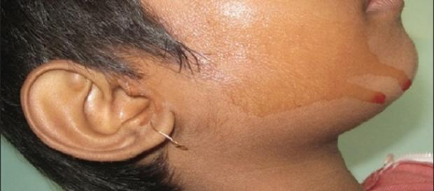 Hematohidrosis | By Saugato Biswas, Trupti Surana, Abhishek De (Image via Falguni Nag/Wikimedia Commons)