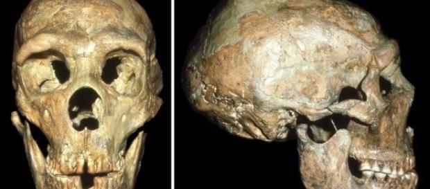 Il cranio di Shanidar, che presenta lesioni incompatibili con la vita di allora