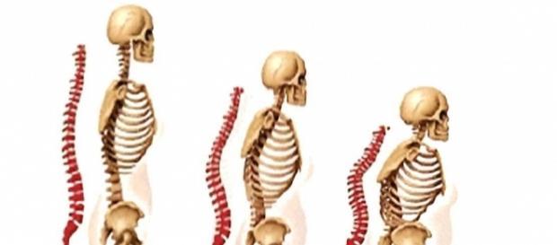 Osteoporose? Was Sie wissen sollten. - osd-ev.org
