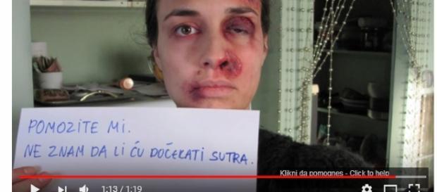 Mulher, durante um ano, fotografou-se mostrando sua realidade (Foto: Captura de vídeo)