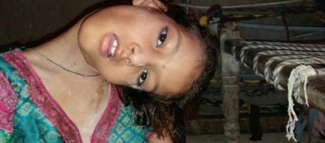 A garota sofre de dores por causa do pescoço encurvado