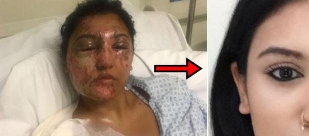 Vítima atacada com ácido mostra recuperação