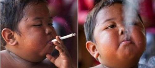 Lembra do menino que fumava 40 cigarros por dia?