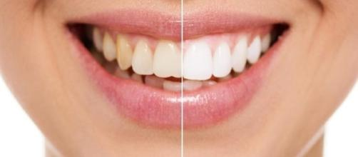 Descubra o que é bom para clarear os dentes e o que é prejudicial