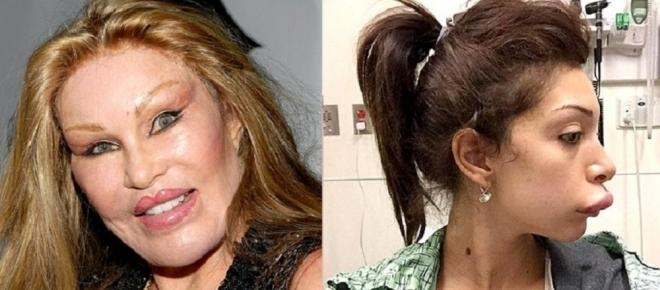 Depoimentos de celebridades que se arrependeram da cirurgia plástica