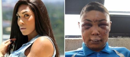 Verônica Bolina antes e depois das agressões, em 2015.