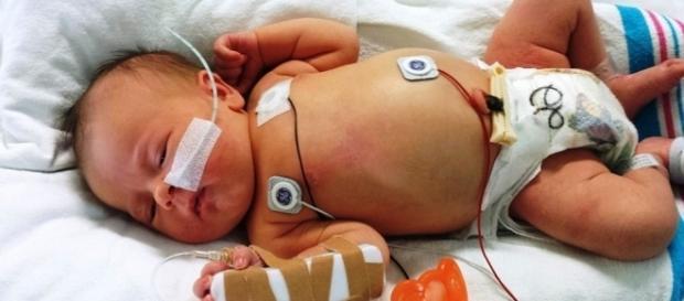 Doença é grave e pode levar a criança a morte