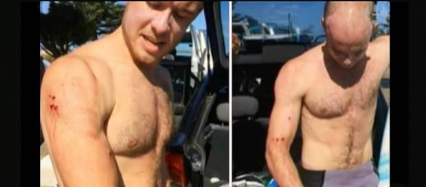 A British surfer survived a shark attack by punching it in the face. [Image credit: Guardian News/Youtube screencap]