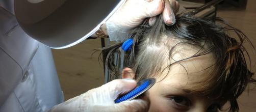 Los piojos son parásitos muy comunes entre los niños. - youtube.com