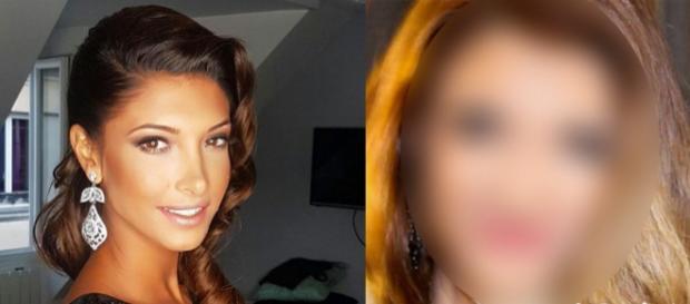 Mélanie Dédigama : Une nouvelle photo choc qui confirme les rumeurs de chirurgie esthétique !
