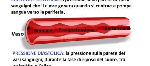 Secondo le nuove linee guida statunitense, l'ipertensione..