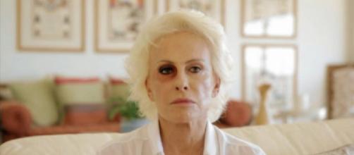 Após onda de boatos, Ana Maria Braga explica motivo do olho roxo