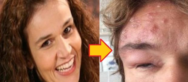 Claudia Rodrigues aparece com rosto deformado